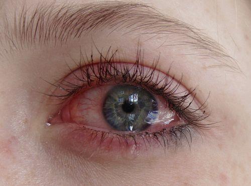 pessoa chorando cor dos olhos