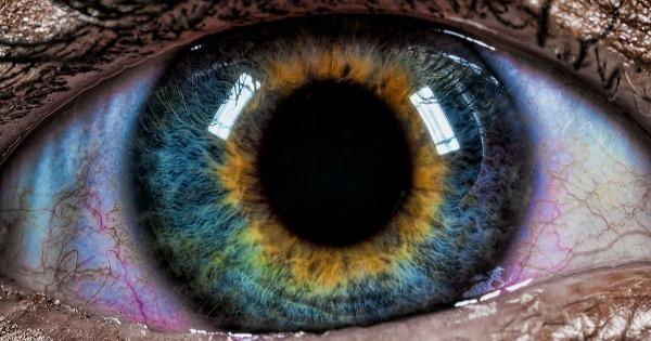 Pessoas de olhos violeta ou com duas cores diferentes