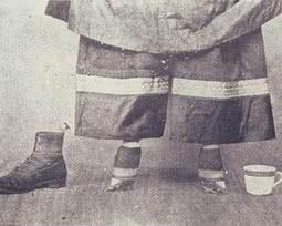 Pés de lótus: a história por trás da tradição do pé de chinesa