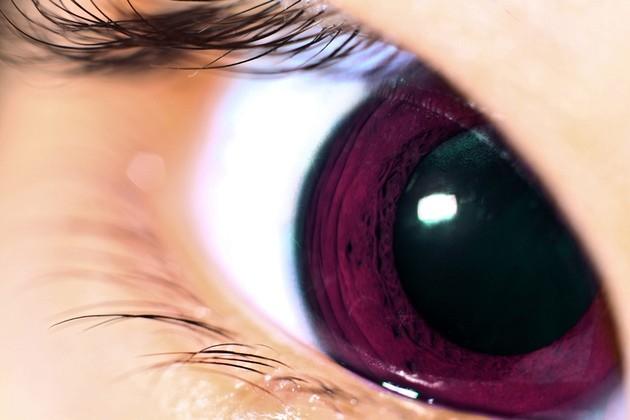 Olhos violeta