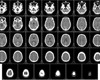 O que é morte cerebral e como ela acontece?